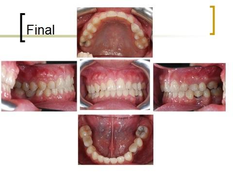 牙齒矯正,跨科治療,案例3