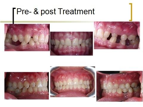 牙齒矯正,跨科治療,案例4
