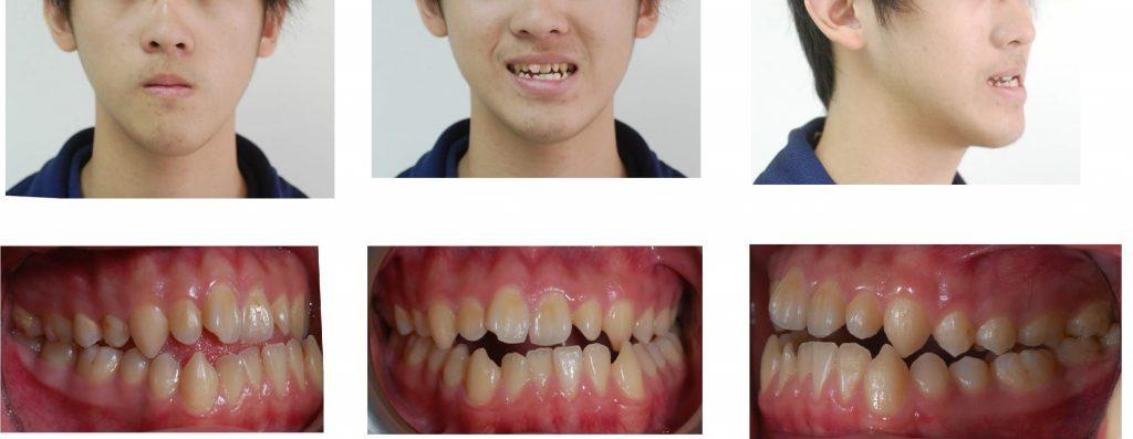 正顎手術-術前