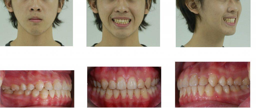 正顎手術-戽斗案例術後