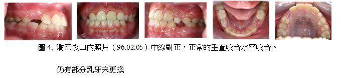 牙齒矯正,案例,前牙4