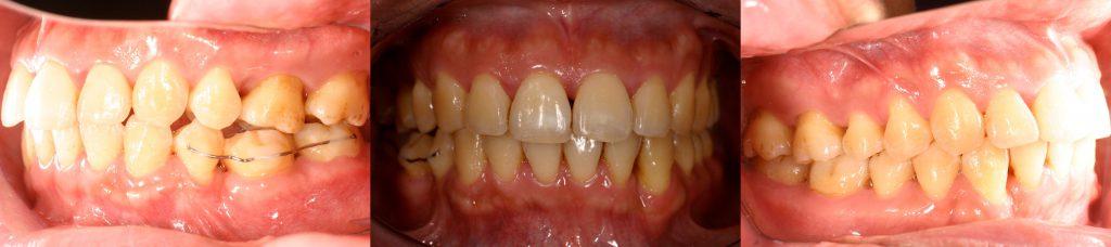 4牙齒矯正,案例,牙齒亂3