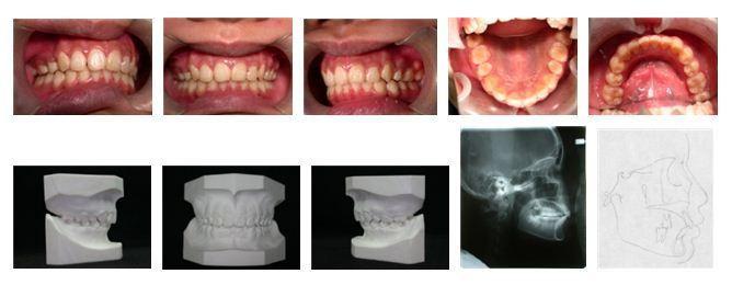 5牙齒矯正,犬齒,案例4