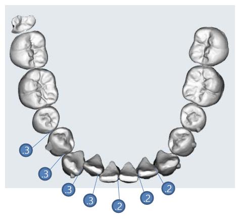 李慈心醫師 隱形矯正利用多顆牙齒鄰接面修磨來得到排列空間