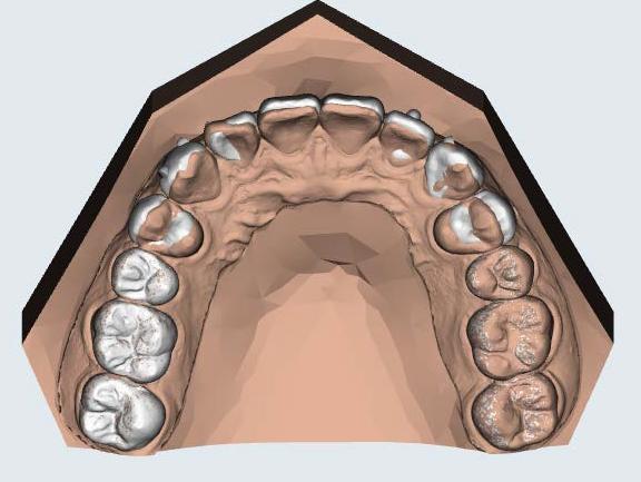 李慈心醫師 隱形矯正治療前後電腦預測圖 上顎