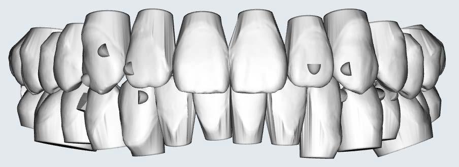 李慈心醫師 隱形矯正設計各種附件(attachment) 來對牙齒施力 移動牙齒