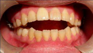 開咬矯正 彰化牙齒矯正 齒顎矯正專家