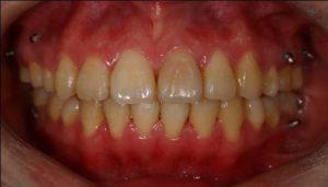 開咬矯正 牙齒矯正 彰化隱形矯正