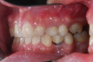 牙齒矯正 缺牙 埔里牙齒矯正 隱形矯正推薦
