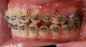 彰化牙齒矯正 埔里矯正推薦 李慈心醫師