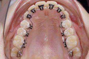 埔里隱形矯正 隱形矯正專家 牙齒矯正