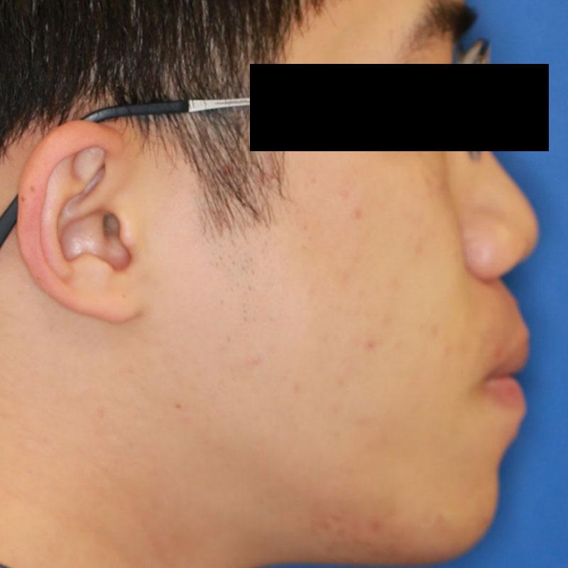 正顎手術治療後-洪X翔側臉照