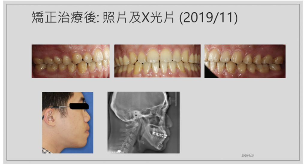 20200917戽斗歪臉合併開咬6